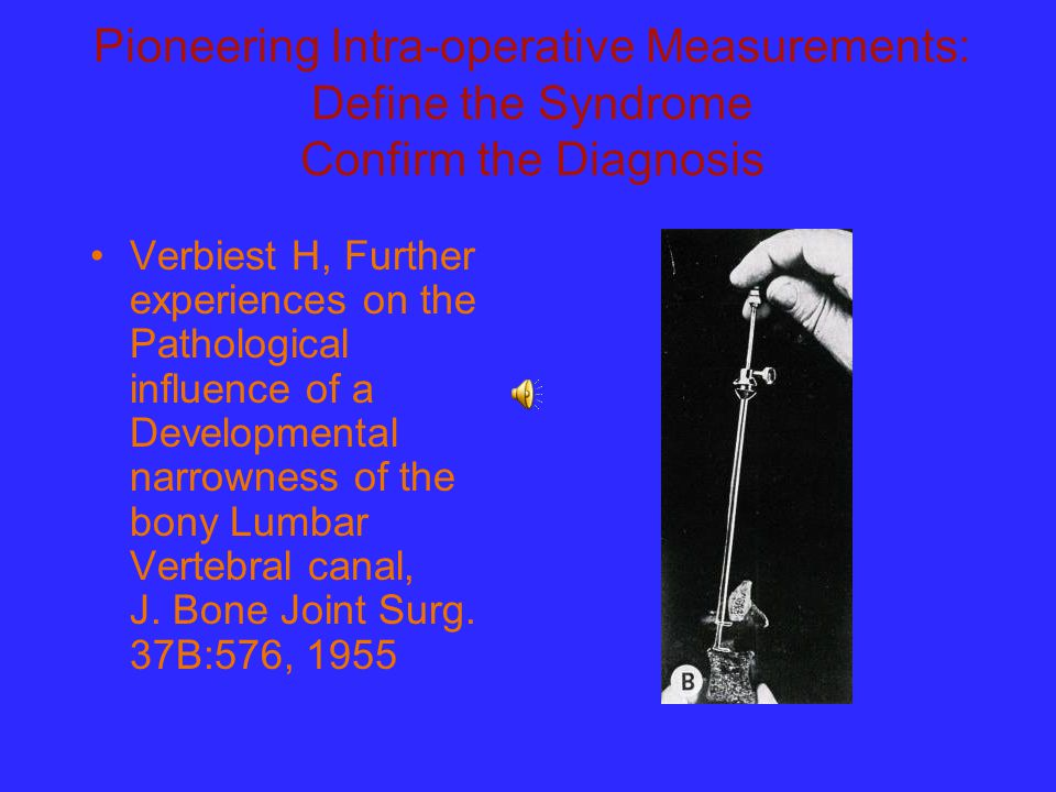 Pioneering Intra-operative Measurements: Define the Syndrome Confirm the Diagnosis Verbiest H, Further experiences on the Pathological influence of a