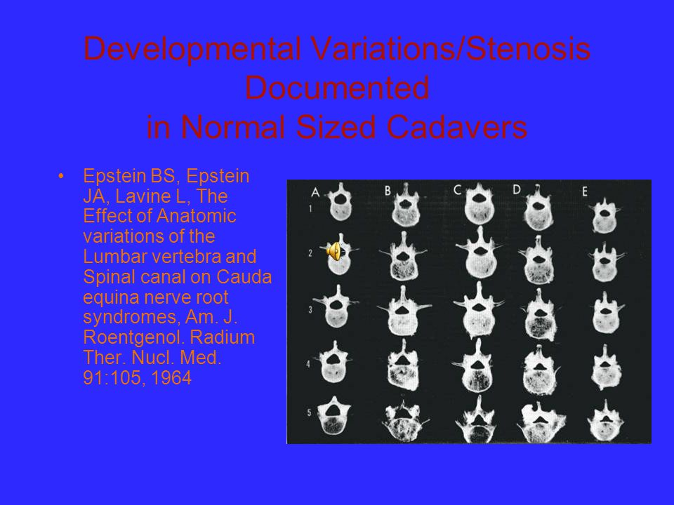 Developmental Variations/Stenosis Documented in Normal Sized Cadavers Epstein BS, Epstein JA, Lavine L, The Effect of Anatomic variations of the Lumba