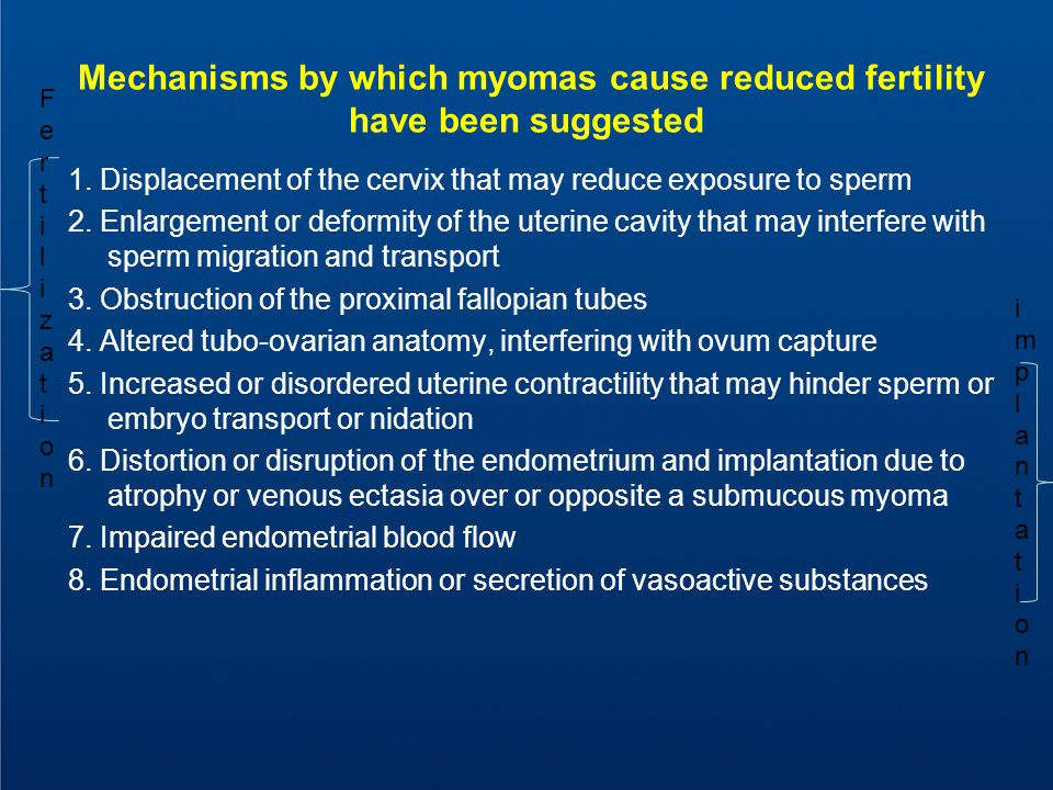 Summary of Potential Mechanisms by Which Uterine Fibroids May Have an Effect on Embryo Implantation Andrew W.