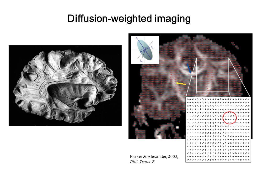 - x2x2 stimuli u 1 context u 2 x1x1 + + - - - + u 1 Z 1 u 2 Z 2 Example: context-dependent decay u1u1 u2u2 x2x2 x1x1 Penny, Stephan, Mechelli, Friston NeuroImage (2004)