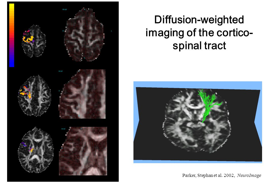 Some models for computing effective connectivity from fMRI data Structural Equation Modelling (SEM) McIntosh et al.