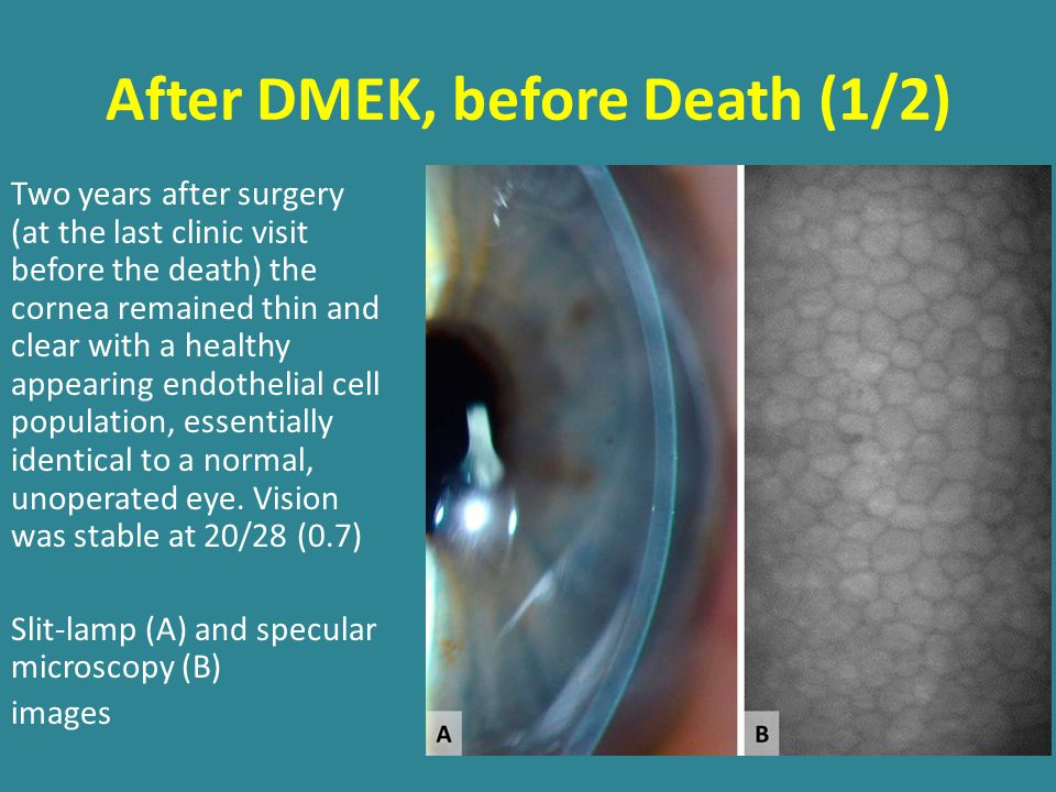 After DMEK, before Death (1/2) Two years after surgery (at the last clinic visit before the death) the cornea remained thin and clear with a healthy appearing endothelial cell population, essentially identical to a normal, unoperated eye.