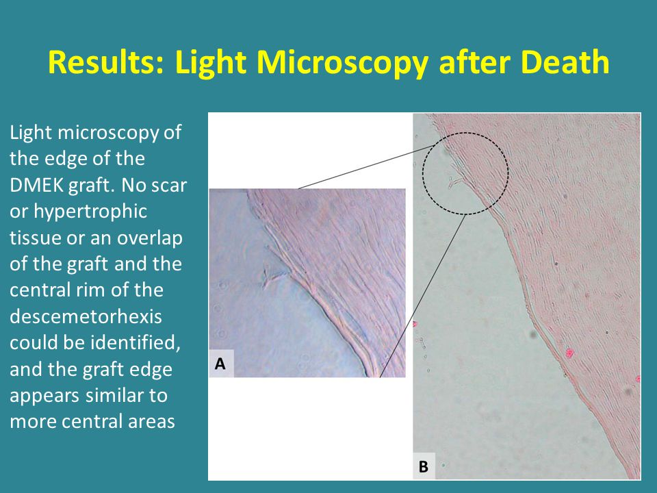Results: Light Microscopy after Death Light microscopy of the edge of the DMEK graft.