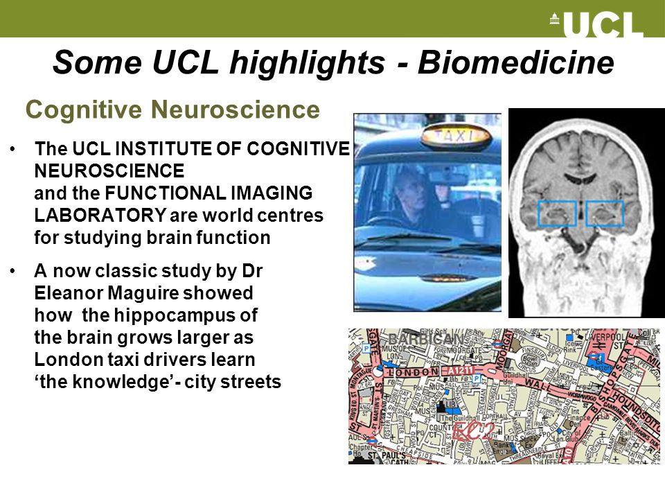 Some UCL highlights - Biomedicine The UCL INSTITUTE OF COGNITIVE NEUROSCIENCE and the FUNCTIONAL IMAGING LABORATORY are world centres for studying bra