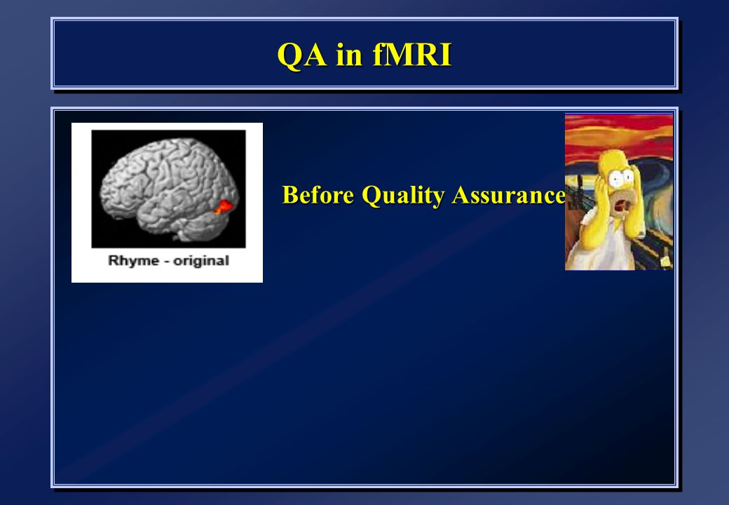 QA in fMRI Before Quality Assurance