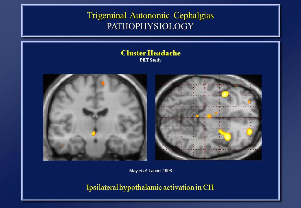 Trigeminal Autonomic Cephalgias PATHOPHYSIOLOGY Cluster Headache PET Study May et al, Lancet 1998 Ipsilateral hypothalamic activation in CH