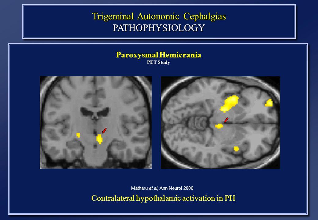 Trigeminal Autonomic Cephalgias PATHOPHYSIOLOGY Paroxysmal Hemicrania PET Study Matharu et al, Ann Neurol 2006 Contralateral hypothalamic activation in PH