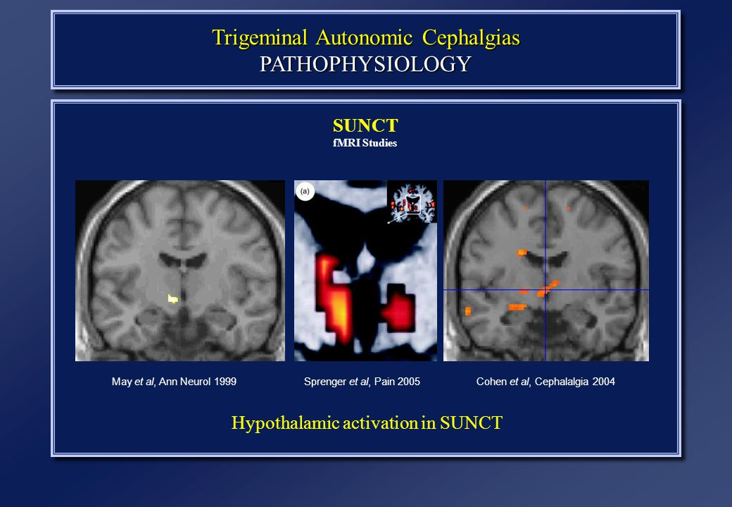 Trigeminal Autonomic Cephalgias PATHOPHYSIOLOGY SUNCT fMRI Studies May et al, Ann Neurol 1999Cohen et al, Cephalalgia 2004Sprenger et al, Pain 2005 Hypothalamic activation in SUNCT