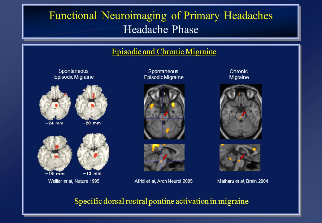 Functional Neuroimaging of Primary Headaches Headache Phase Episodic and Chronic Migraine Spontaneous Episodic Migraine Weiller et al, Nature 1995 Spo