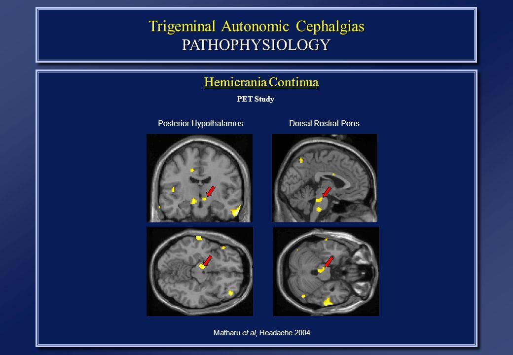 Trigeminal Autonomic Cephalgias PATHOPHYSIOLOGY Hemicrania Continua PET Study Matharu et al, Headache 2004 Posterior HypothalamusDorsal Rostral Pons