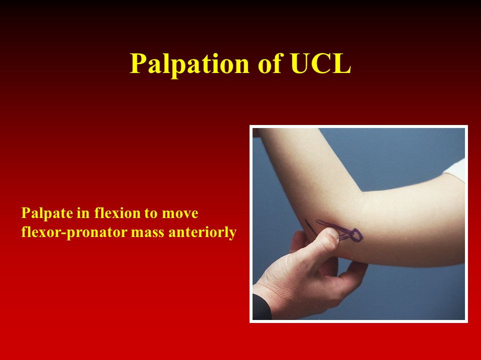 Palpation of UCL Palpate in flexion to move flexor-pronator mass anteriorly