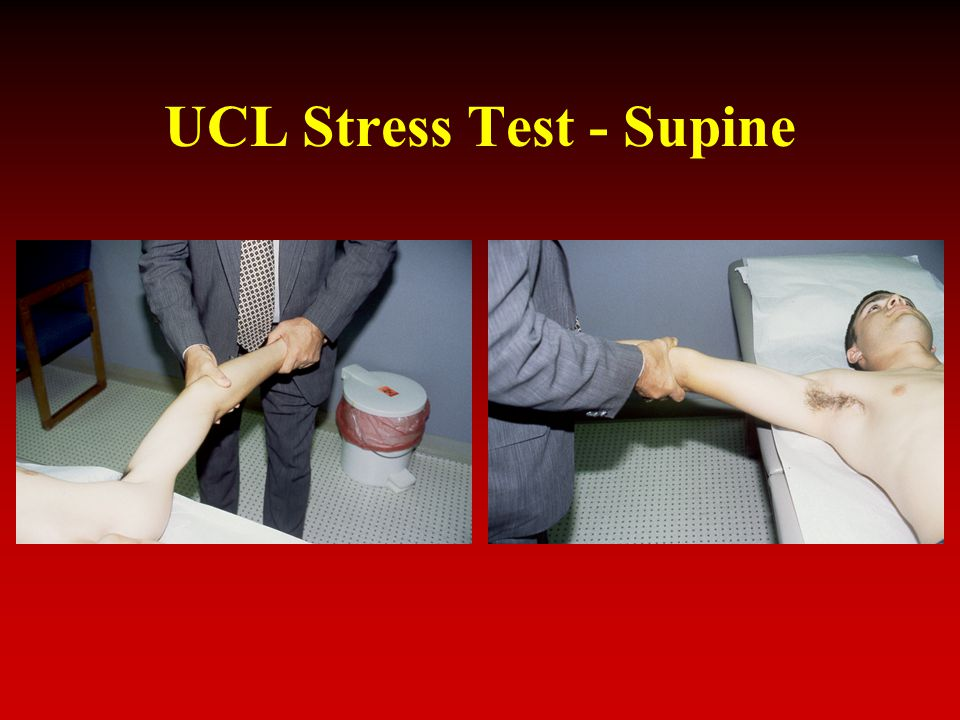 UCL Stress Test - Supine