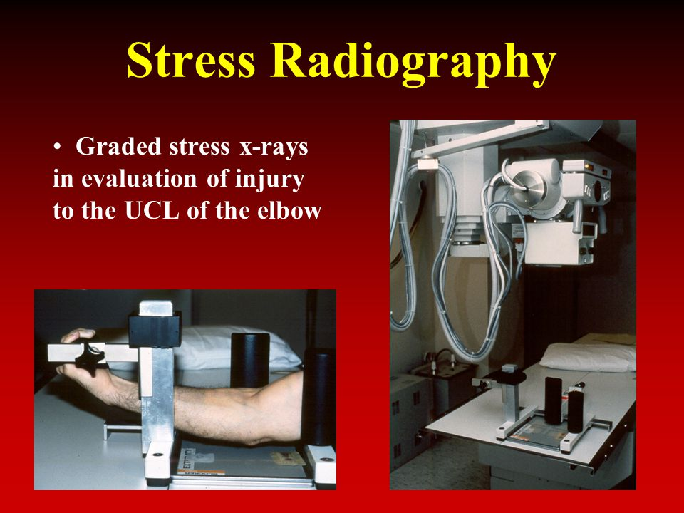 Stress Radiography Graded stress x-rays in evaluation of injury to the UCL of the elbow