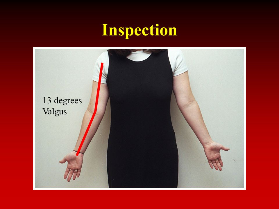 Inspection 13 degrees Valgus