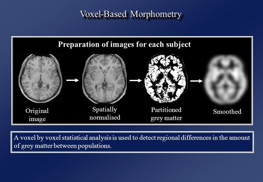 Original image Spatially normalised Partitioned grey matter Smoothed Preparation of images for each subject Voxel-Based Morphometry A voxel by voxel statistical analysis is used to detect regional differences in the amount of grey matter between populations.