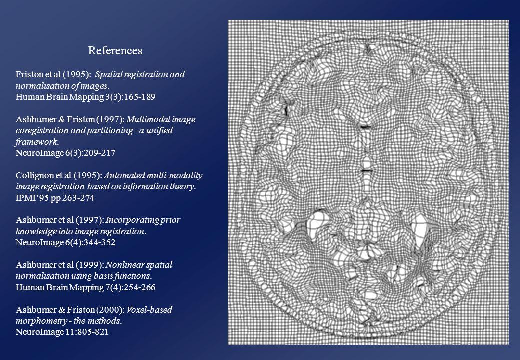 References Friston et al (1995): Spatial registration and normalisation of images.