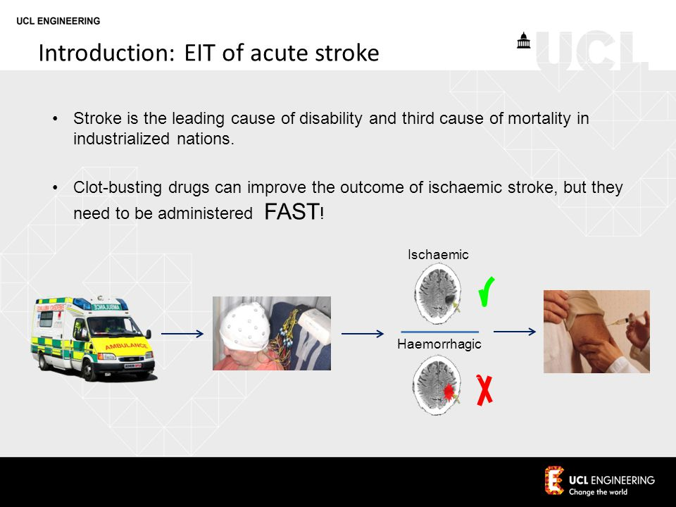 Introduction: EIT of acute stroke Ischaemic Haemorrhagic Stroke is the leading cause of disability and third cause of mortality in industrialized nations.