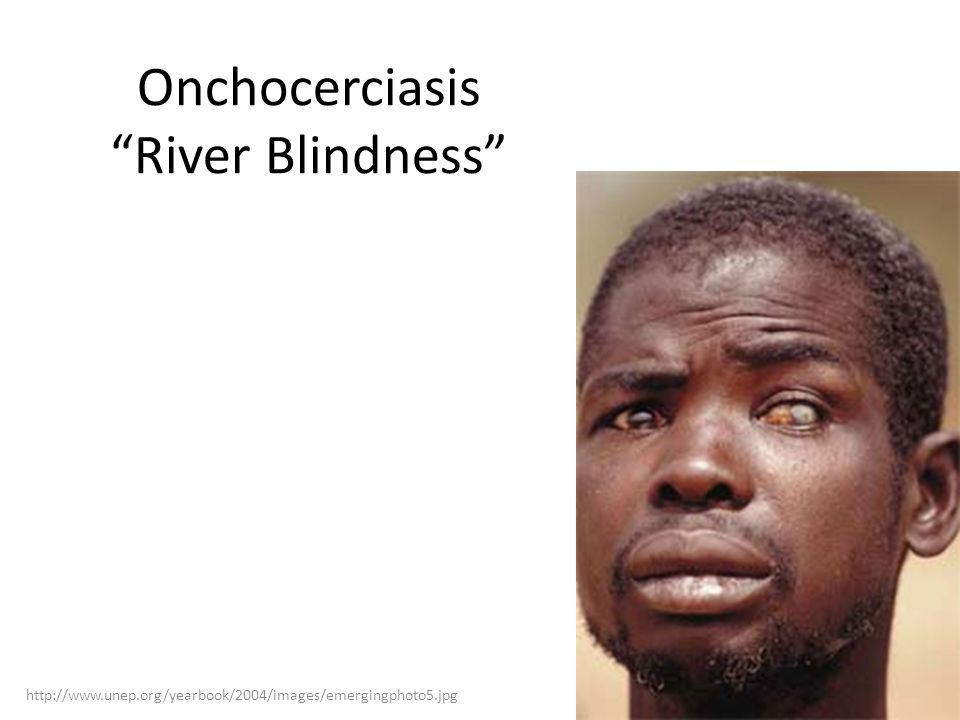 Onchocerciasis River Blindness http://www.unep.org/yearbook/2004/images/emergingphoto5.jpg Second leading infectious cause of blindness in the world