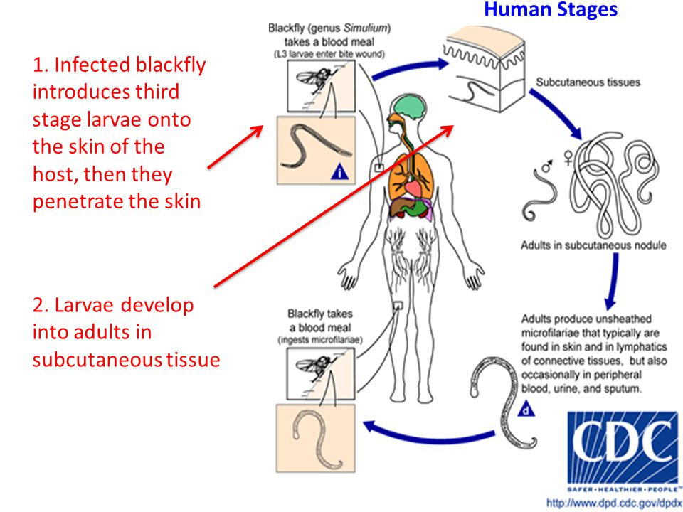 1. Infected blackfly introduces third stage larvae onto the skin of the host, then they penetrate the skin 2. Larvae develop into adults in subcutaneo