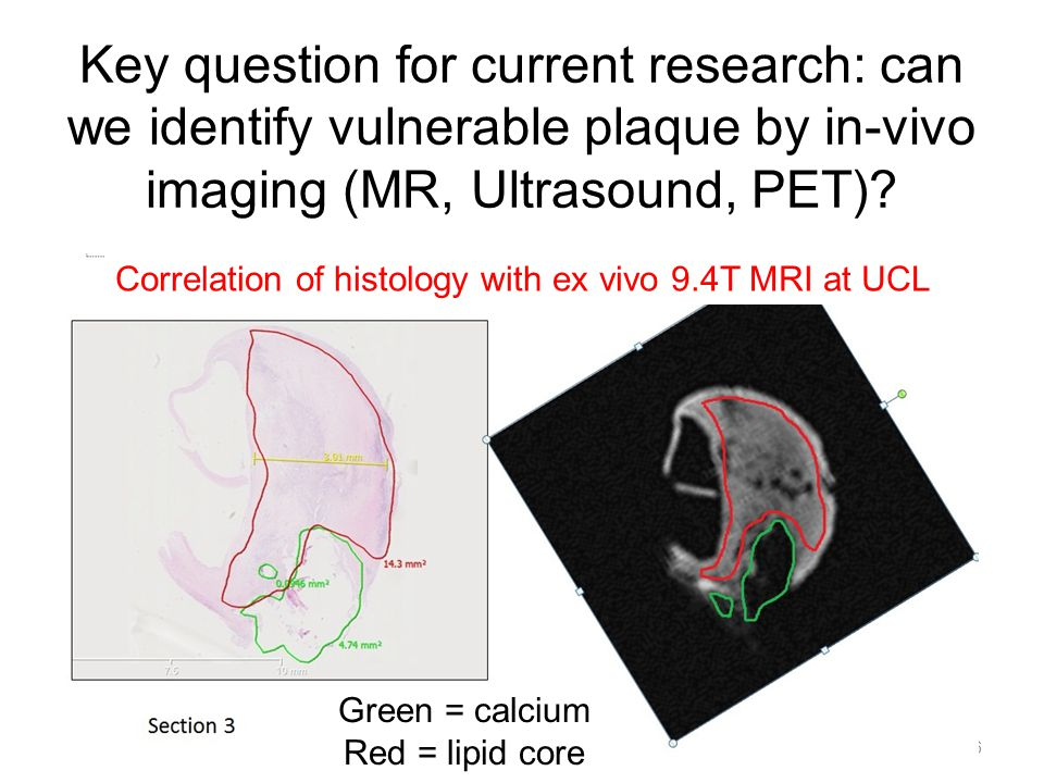 Key question for current research: can we identify vulnerable plaque by in-vivo imaging (MR, Ultrasound, PET).
