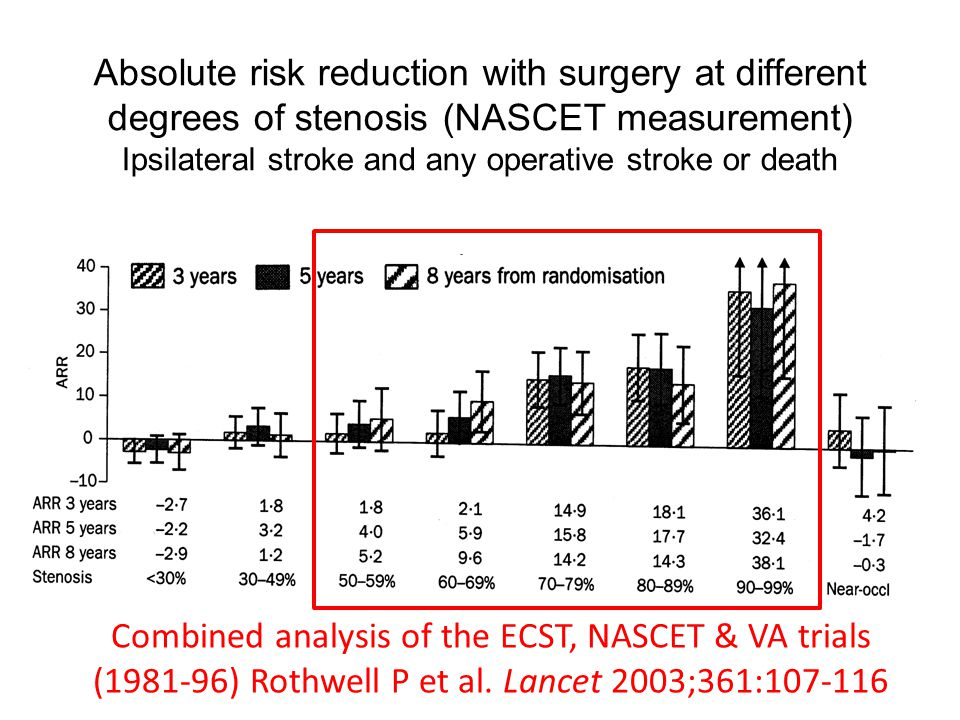 Absolute risk reduction with surgery at different degrees of stenosis (NASCET measurement) Ipsilateral stroke and any operative stroke or death Combined analysis of the ECST, NASCET & VA trials (1981-96) Rothwell P et al.