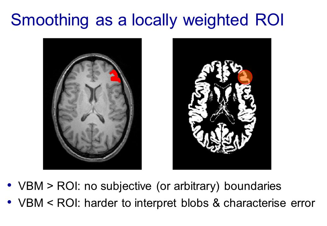 Smoothing as a locally weighted ROI VBM > ROI: no subjective (or arbitrary) boundaries VBM < ROI: harder to interpret blobs & characterise error