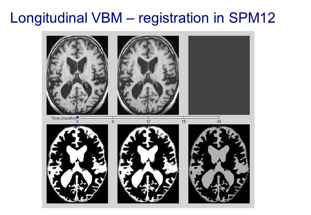 Longitudinal VBM – registration in SPM12