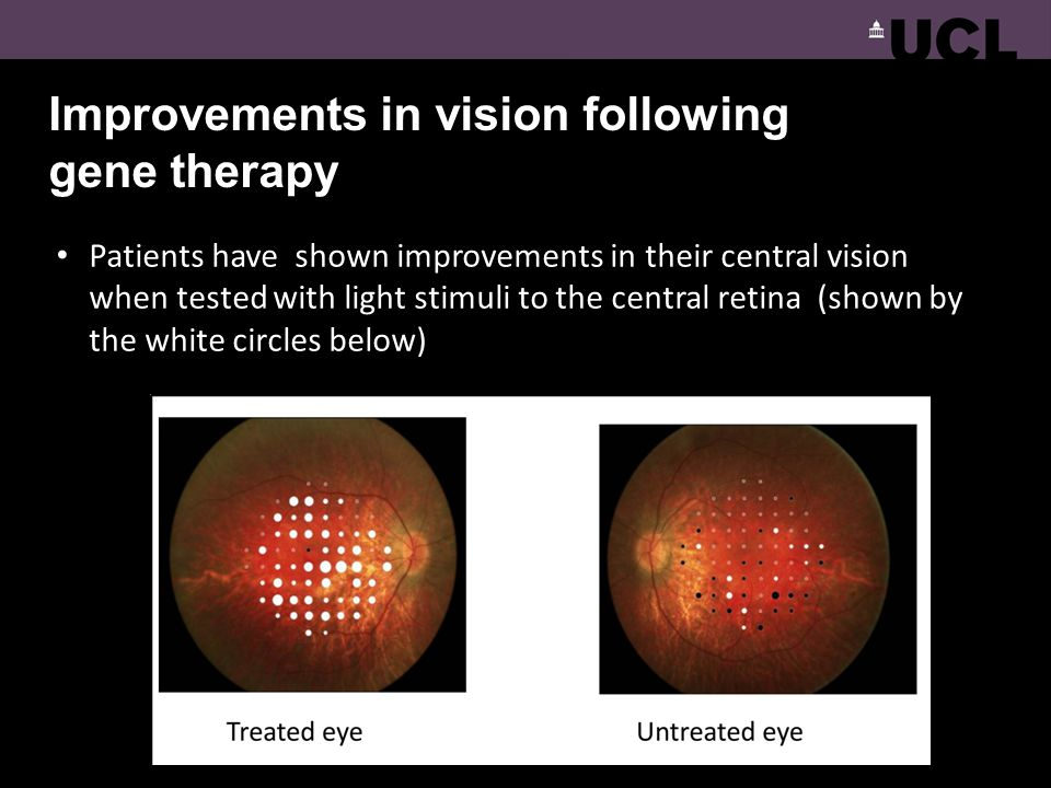 Improvements in vision following gene therapy Patients have shown improvements in their central vision when tested with light stimuli to the central r