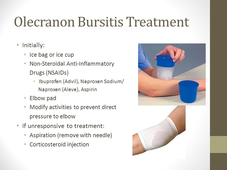 Olecranon Bursitis Treatment Initially: Ice bag or ice cup Non-Steroidal Anti-Inflammatory Drugs (NSAIDs) Ibuprofen (Advil), Naproxen Sodium/ Naproxen (Aleve), Aspirin Elbow pad Modify activities to prevent direct pressure to elbow If unresponsive to treatment: Aspiration (remove with needle) Corticosteroid injection