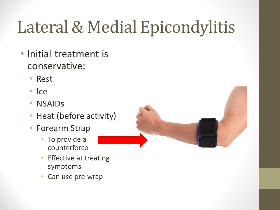 Lateral & Medial Epicondylitis Initial treatment is conservative: Rest Ice NSAIDs Heat (before activity) Forearm Strap To provide a counterforce Effective at treating symptoms Can use pre-wrap