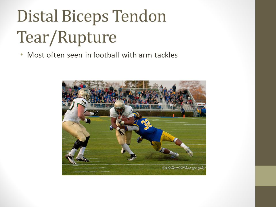 Distal Biceps Tendon Tear/Rupture Most often seen in football with arm tackles