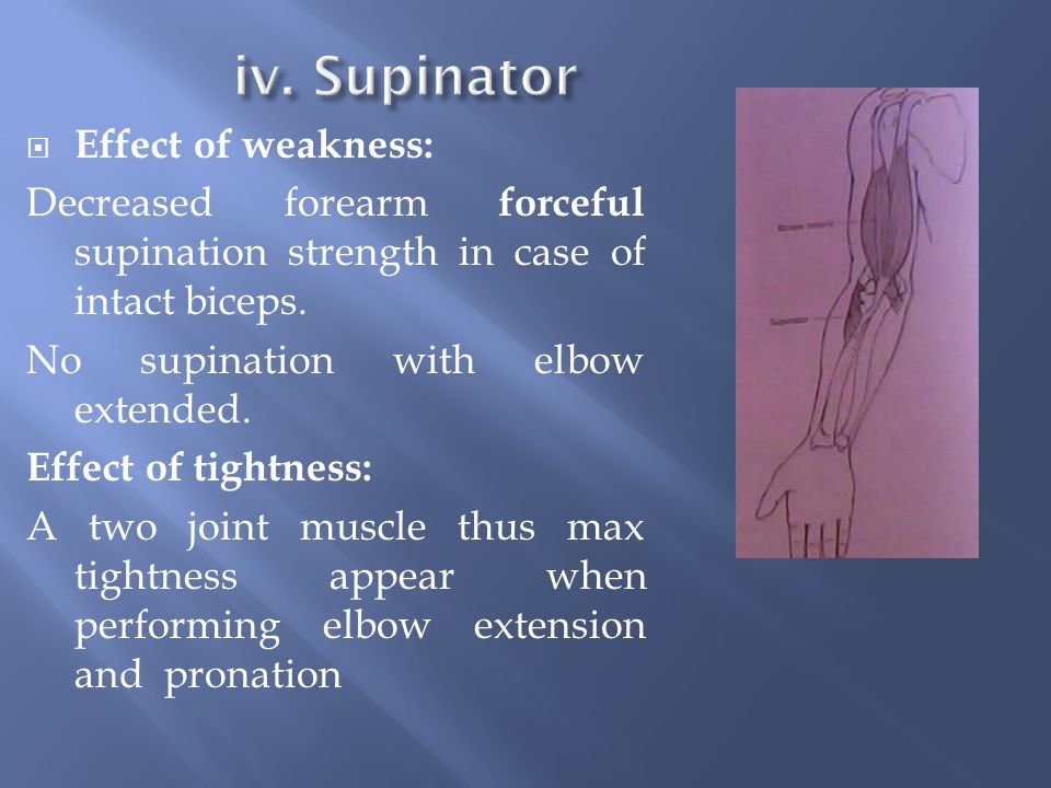  Effect of weakness: Decreased forearm forceful supination strength in case of intact biceps.