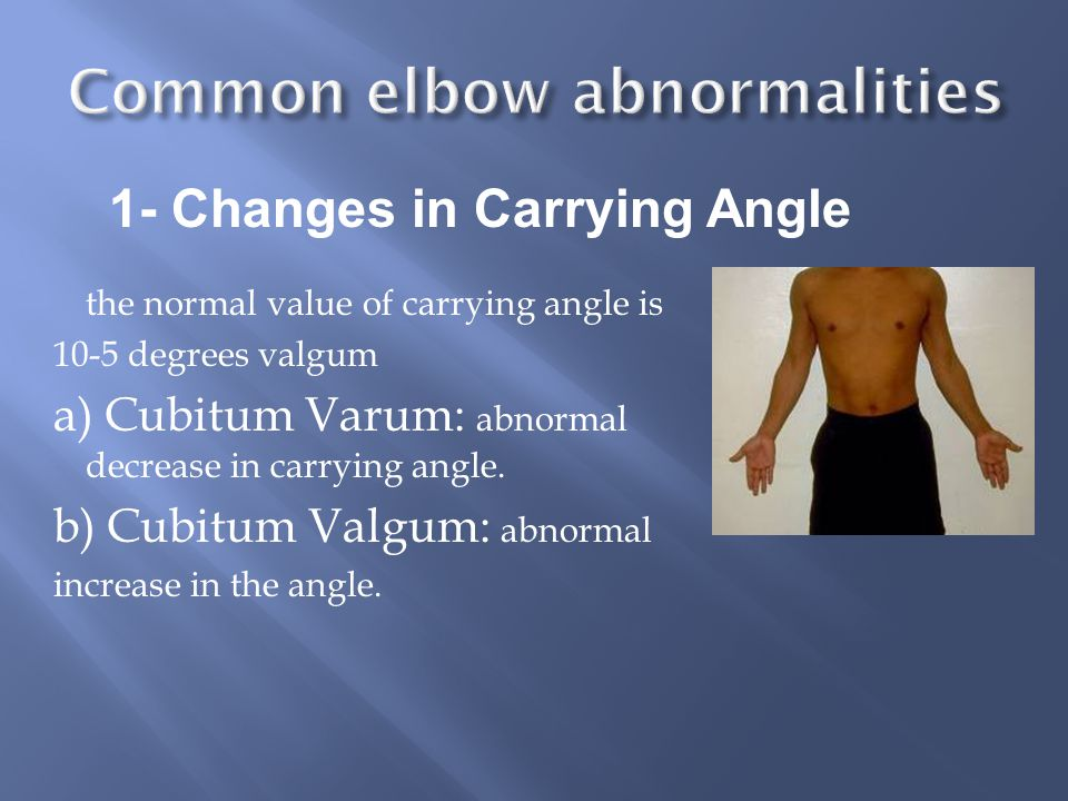 the normal value of carrying angle is 10-5 degrees valgum a) Cubitum Varum: abnormal decrease in carrying angle.