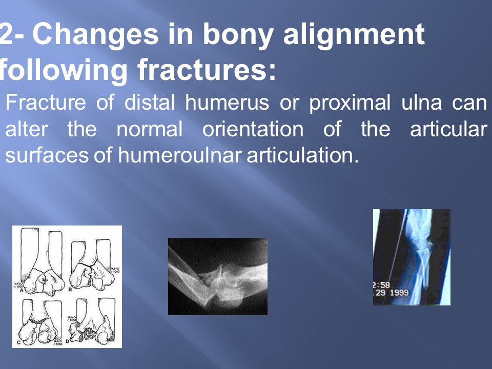 2- Changes in bony alignment following fractures: Fracture of distal humerus or proximal ulna can alter the normal orientation of the articular surfaces of humeroulnar articulation.