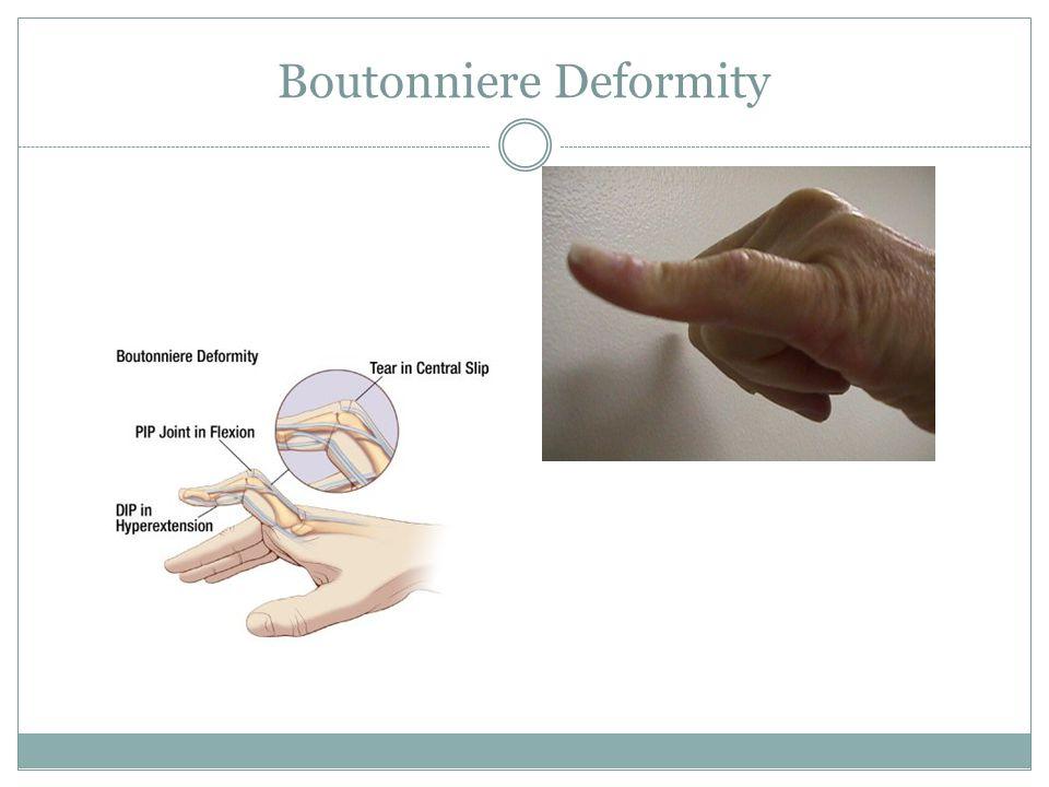Boutonniere Deformity