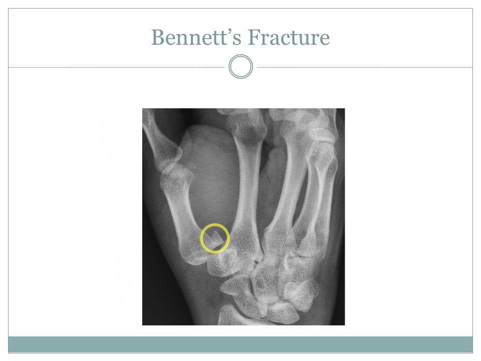 Bennett's Fracture