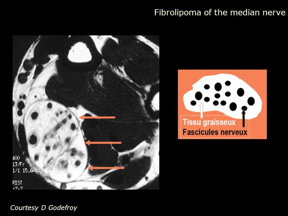 Courtesy D Godefroy Fibrolipoma of the median nerve