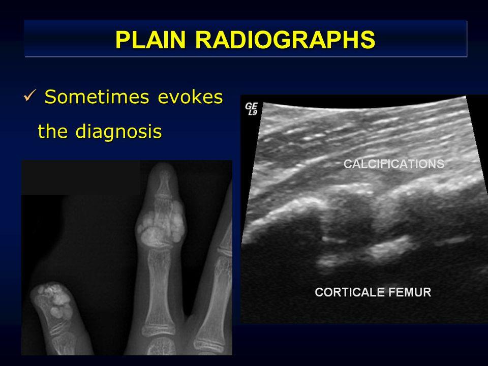 PLAIN RADIOGRAPHS Sometimes evokes the diagnosis Sometimes evokes the diagnosis