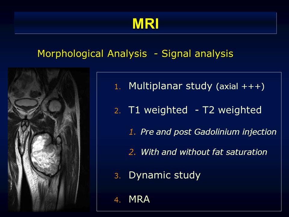 MRI Morphological Analysis - Signal analysis 1. Multiplanar study (axial +++) 2.