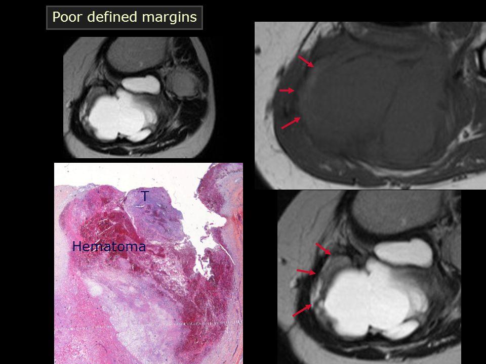 Poor defined margins T Hematoma