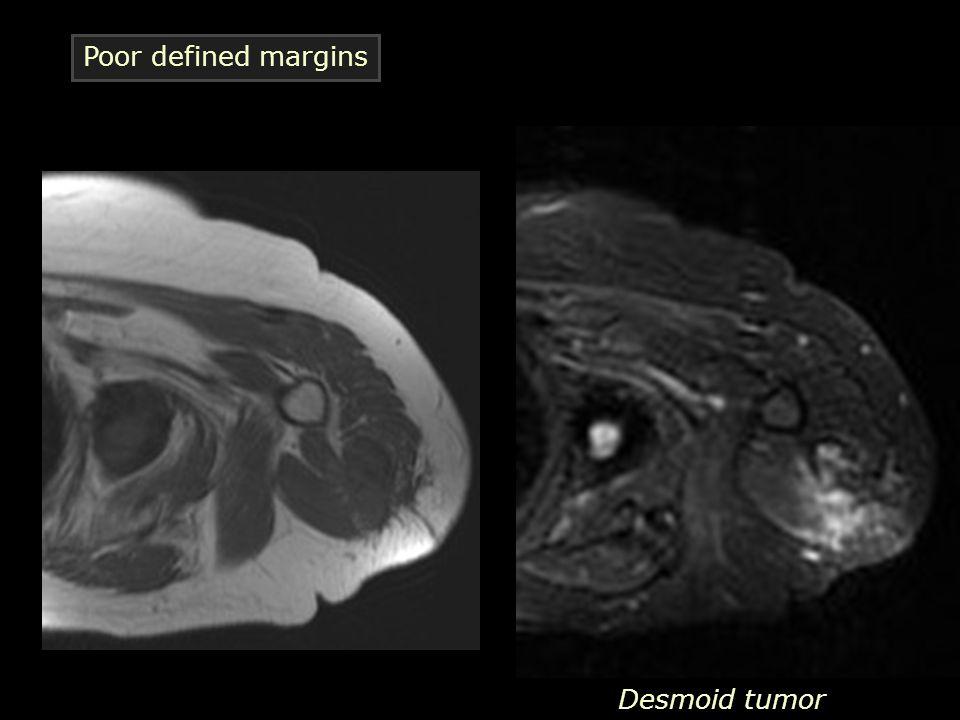 Desmoid tumor Poor defined margins
