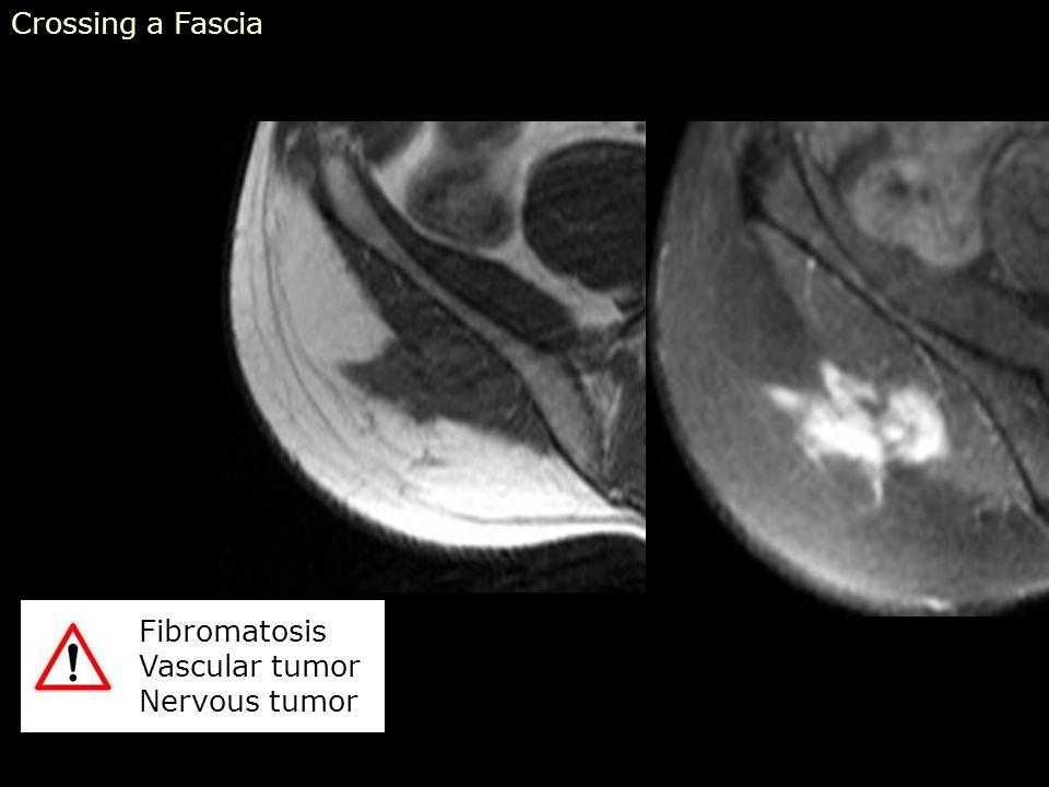 Crossing a Fascia Fibromatosis Vascular tumor Nervous tumor