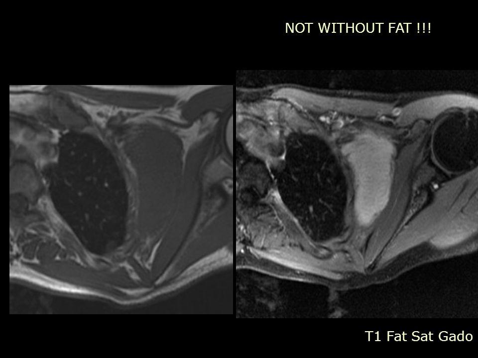 NOT WITHOUT FAT !!! T1 Fat Sat Gado