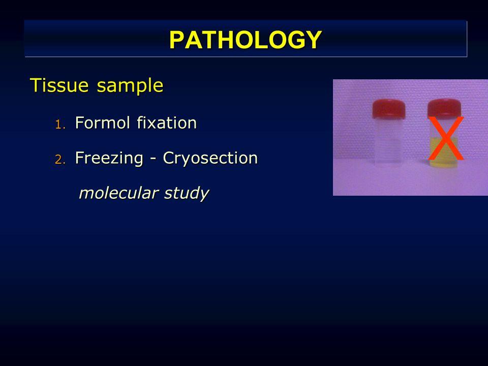 PATHOLOGY Tissue sample 1. Formol fixation 2. Freezing - Cryosection molecular study X