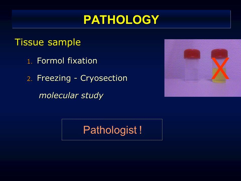 PATHOLOGY Tissue sample 1. Formol fixation 2.