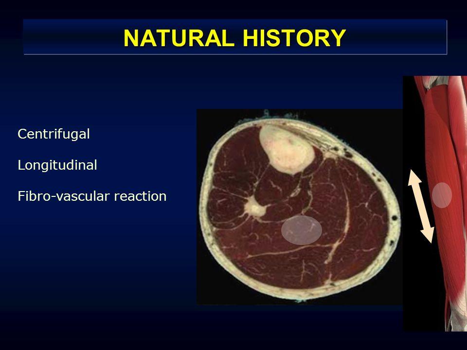 NATURAL HISTORY Centrifugal Longitudinal Fibro-vascular reaction