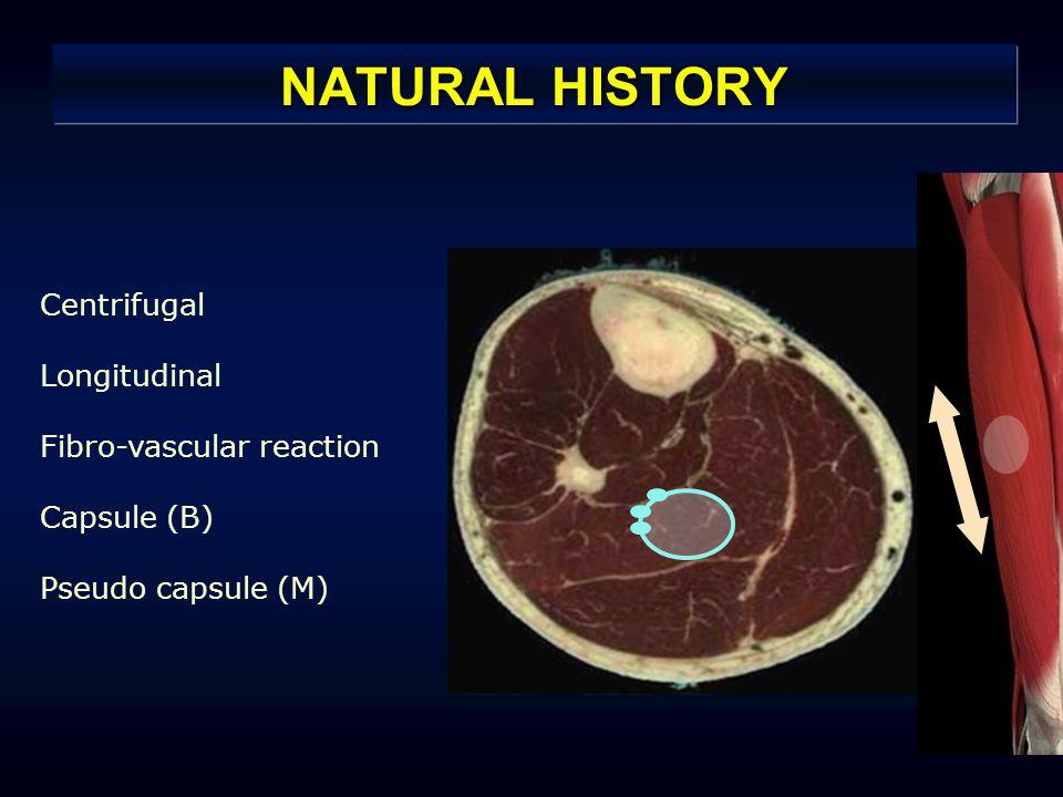 NATURAL HISTORY Centrifugal Longitudinal Fibro-vascular reaction Capsule (B) Pseudo capsule (M)