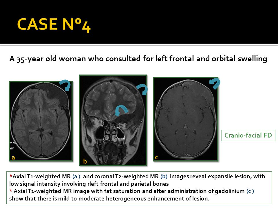 *Axial T1-weighted MR (a ) and coronal T2-weighted MR (b) images reveal expansile lesion, with low signal intensity involving rleft frontal and pariet
