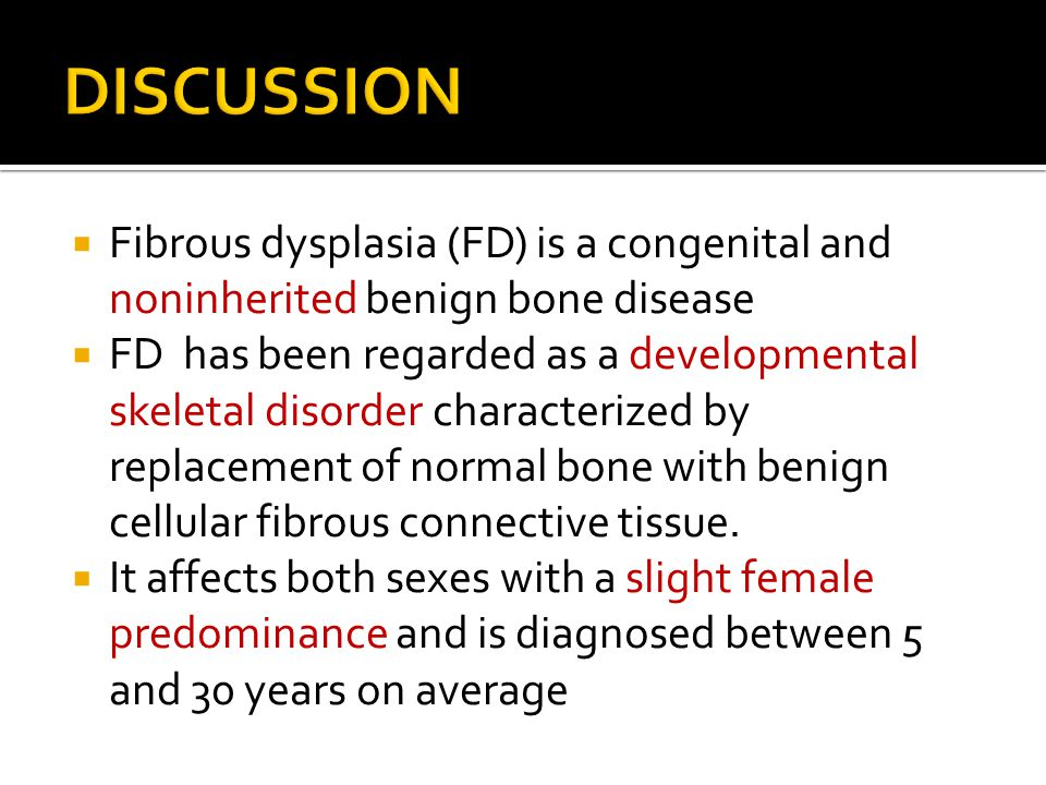  Fibrous dysplasia (FD) is a congenital and noninherited benign bone disease  FD has been regarded as a developmental skeletal disorder characterize