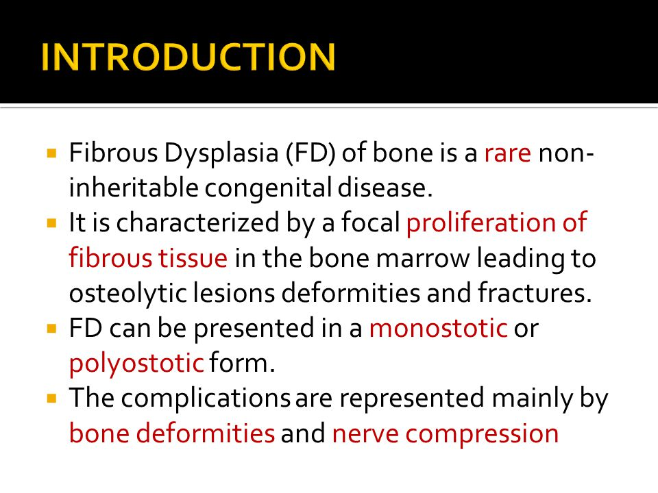  Fibrous Dysplasia (FD) of bone is a rare non- inheritable congenital disease.  It is characterized by a focal proliferation of fibrous tissue in th